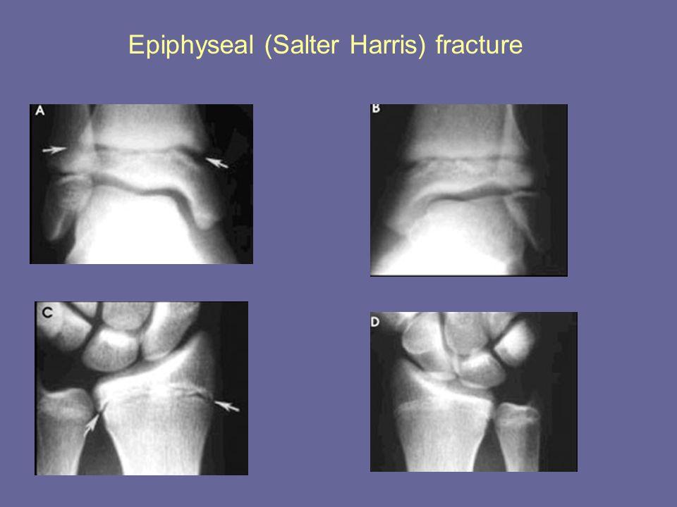 Epiphyseal (Salter Harris) fracture