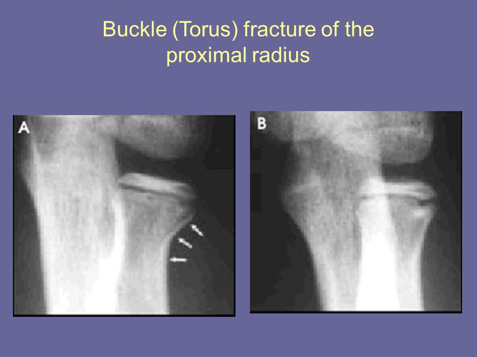 Buckle (Torus) fracture of the proximal radius
