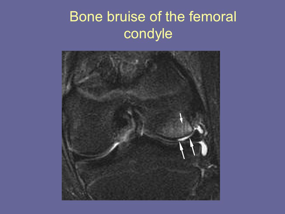 Bone bruise of the femoral condyle