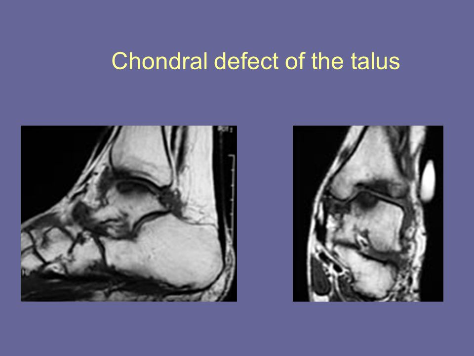 Chondral defect of the talus
