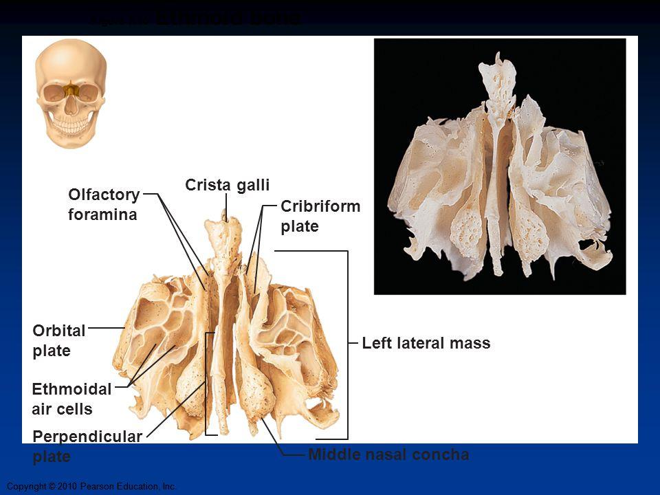 Copyright © 2010 Pearson Education, Inc. Figure 7.10 Ethmoid bone Orbital plate Ethmoidal air cells Perpendicular plate Middle nasal concha Cribriform