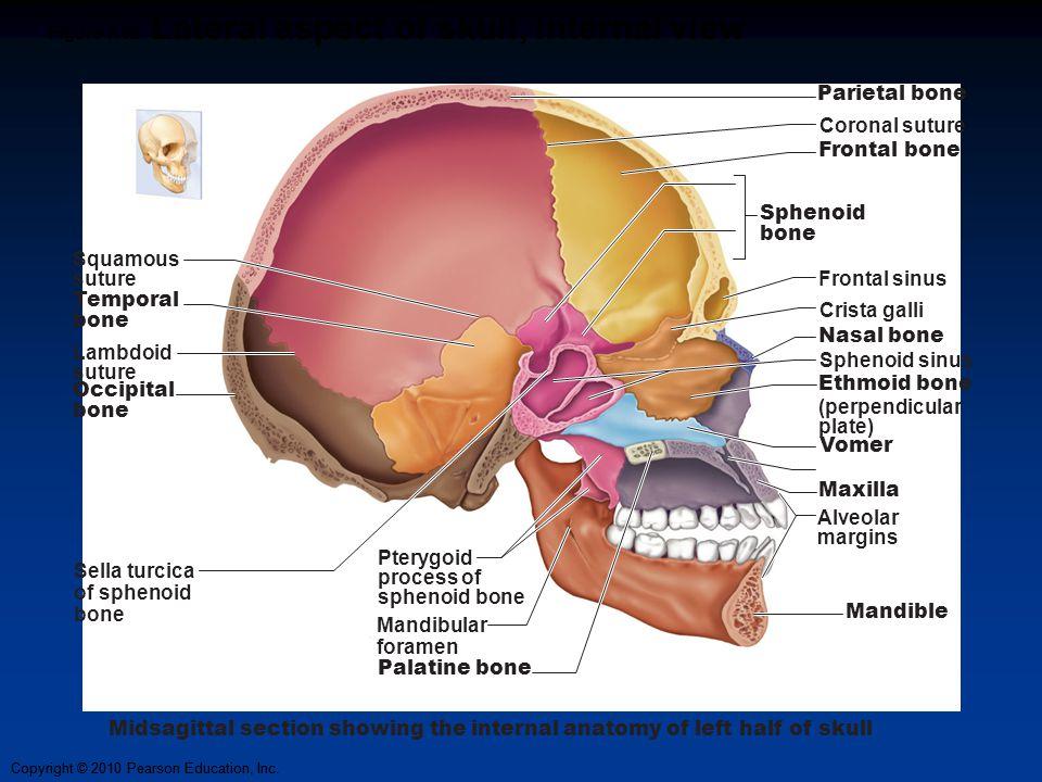 Copyright © 2010 Pearson Education, Inc. Figure 7.5b Lateral aspect of skull, internal view Parietal bone Coronal suture Frontal bone Frontal sinus Cr