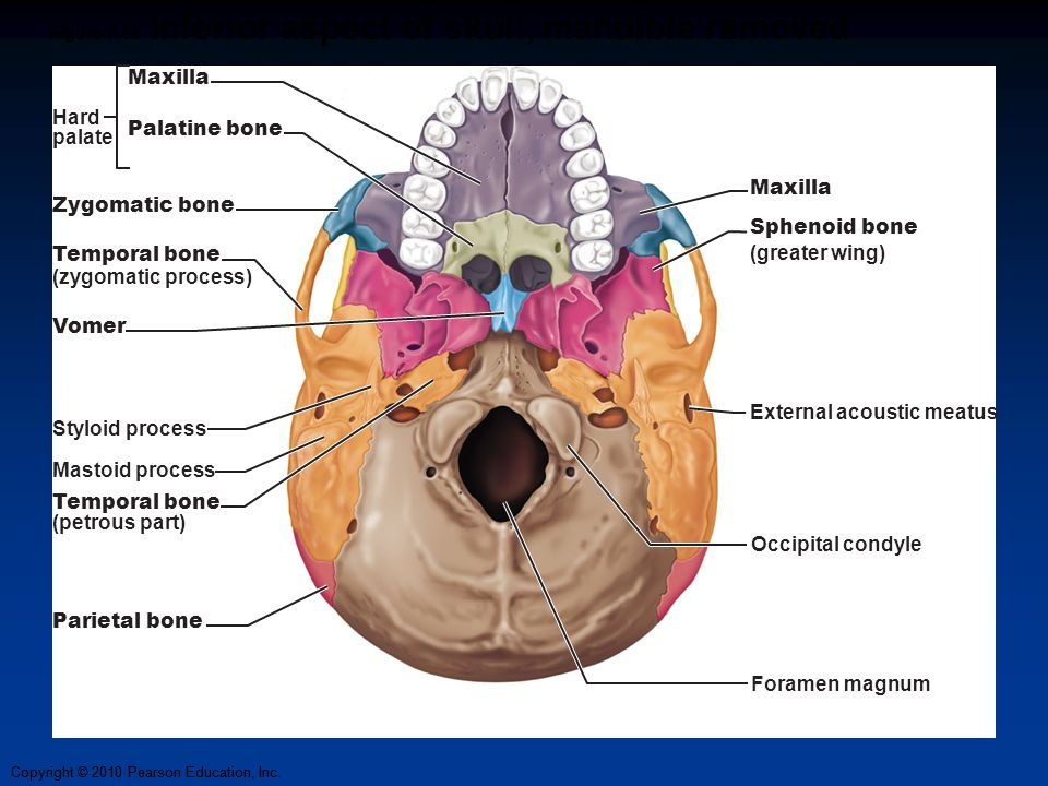 Copyright © 2010 Pearson Education, Inc. Figure 7.6a Inferior aspect of skull, mandible removed Maxilla Sphenoid bone (greater wing) External acoustic