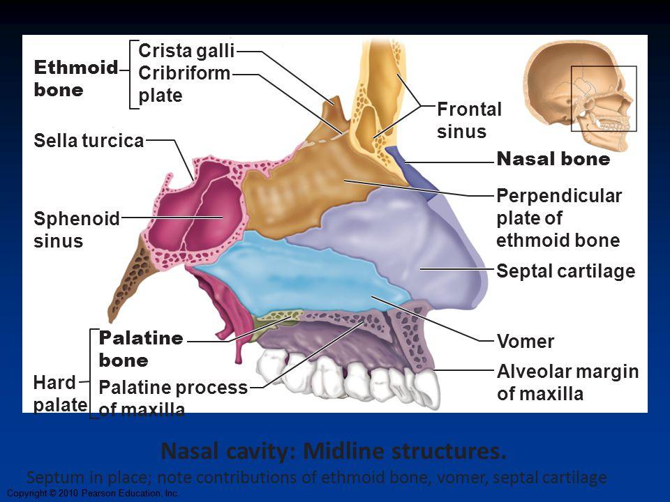 Copyright © 2010 Pearson Education, Inc. Vomer Crista galli Cribriform plate Ethmoid bone Frontal sinus Nasal bone Septal cartilage Alveolar margin of