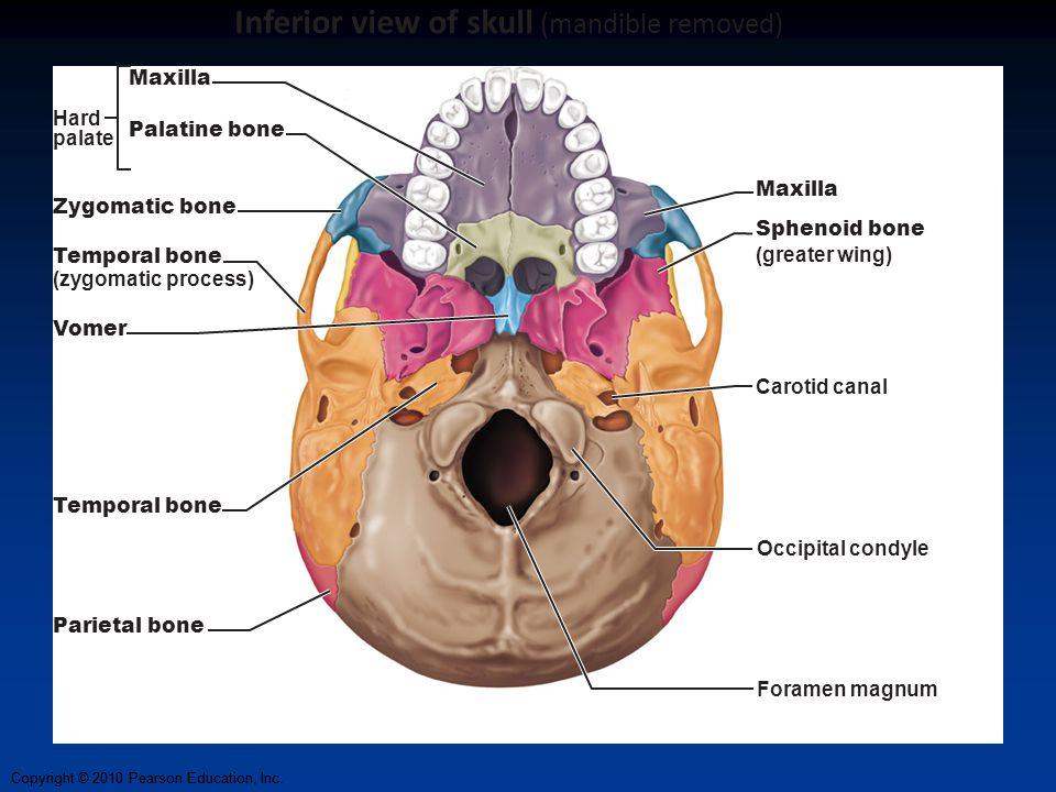 Copyright © 2010 Pearson Education, Inc. Maxilla Sphenoid bone (greater wing) Carotid canal Foramen magnum Occipital condyle Maxilla Hard palate Zygom