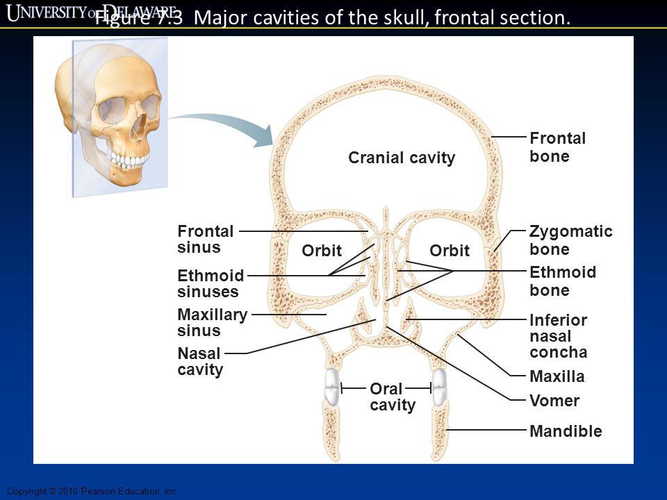 Copyright © 2010 Pearson Education, Inc. Figure 7.3 Major cavities of the skull, frontal section. Frontal sinus Ethmoid sinuses Orbit Cranial cavity O