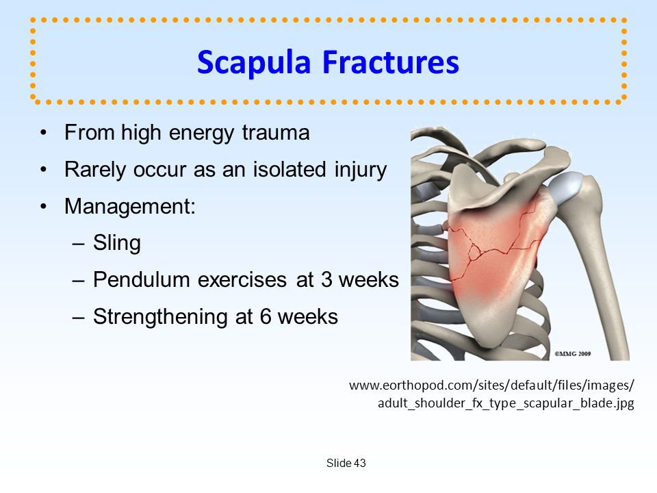 Slide 43 Scapula Fractures From high energy trauma Rarely occur as an isolated injury Management: –Sling –Pendulum exercises at 3 weeks –Strengthening