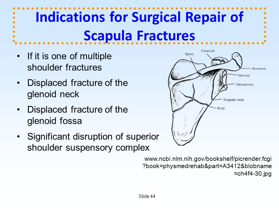 Slide 44 Indications for Surgical Repair of Scapula Fractures If it is one of multiple shoulder fractures Displaced fracture of the glenoid neck Displ