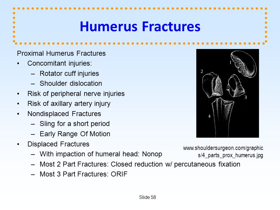 Slide 58 Humerus Fractures Proximal Humerus Fractures Concomitant injuries: –Rotator cuff injuries –Shoulder dislocation Risk of peripheral nerve inju