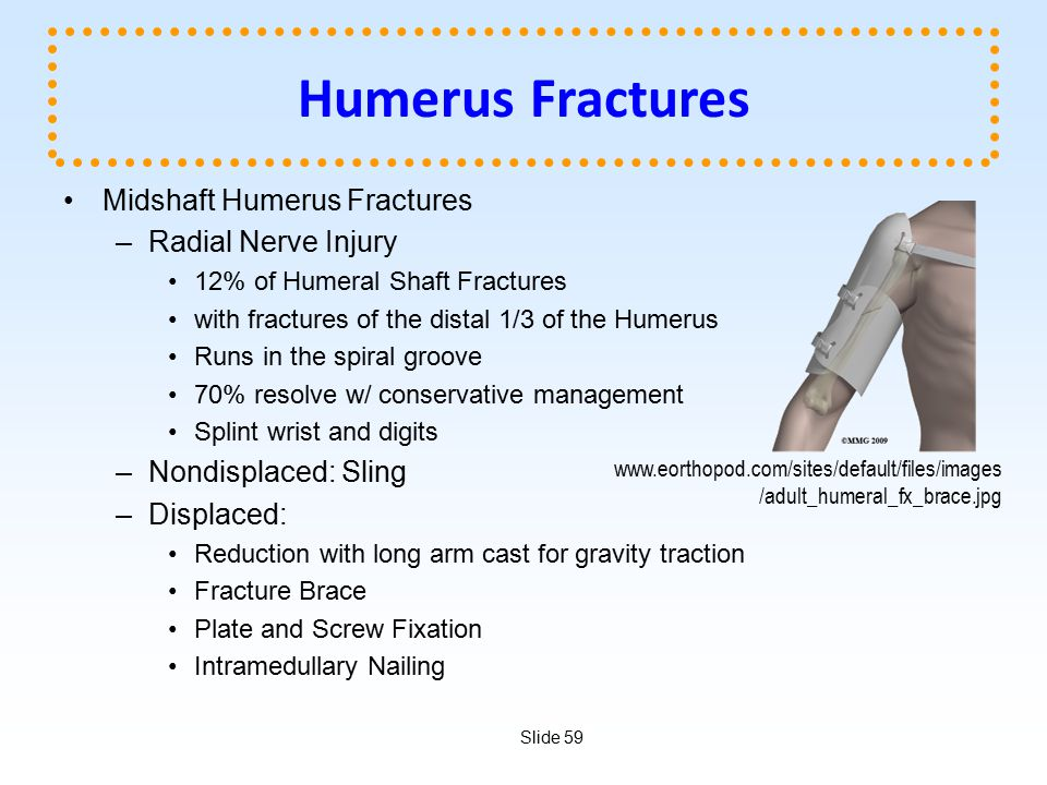 Slide 59 Humerus Fractures Midshaft Humerus Fractures –Radial Nerve Injury 12% of Humeral Shaft Fractures with fractures of the distal 1/3 of the Hume