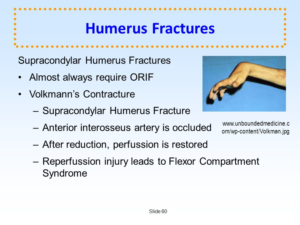 Slide 60 Humerus Fractures Supracondylar Humerus Fractures Almost always require ORIF Volkmann's Contracture –Supracondylar Humerus Fracture –Anterior