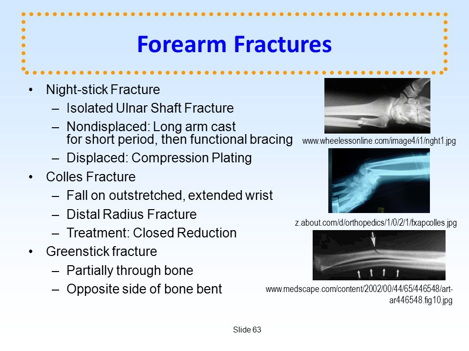 Slide 63 Forearm Fractures Night-stick Fracture –Isolated Ulnar Shaft Fracture –Nondisplaced: Long arm cast for short period, then functional bracing