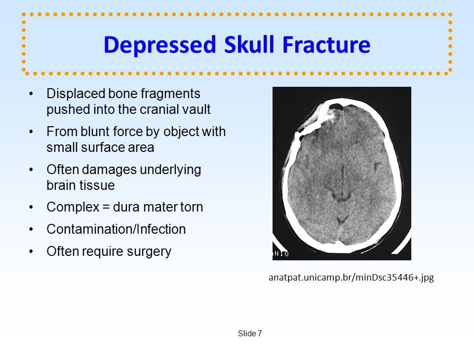 Slide 7 Depressed Skull Fracture Displaced bone fragments pushed into the cranial vault From blunt force by object with small surface area Often damag