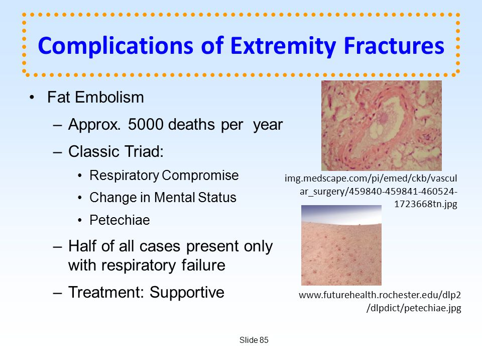 Slide 85 Complications of Extremity Fractures Fat Embolism –Approx. 5000 deaths per year –Classic Triad: Respiratory Compromise Change in Mental Statu