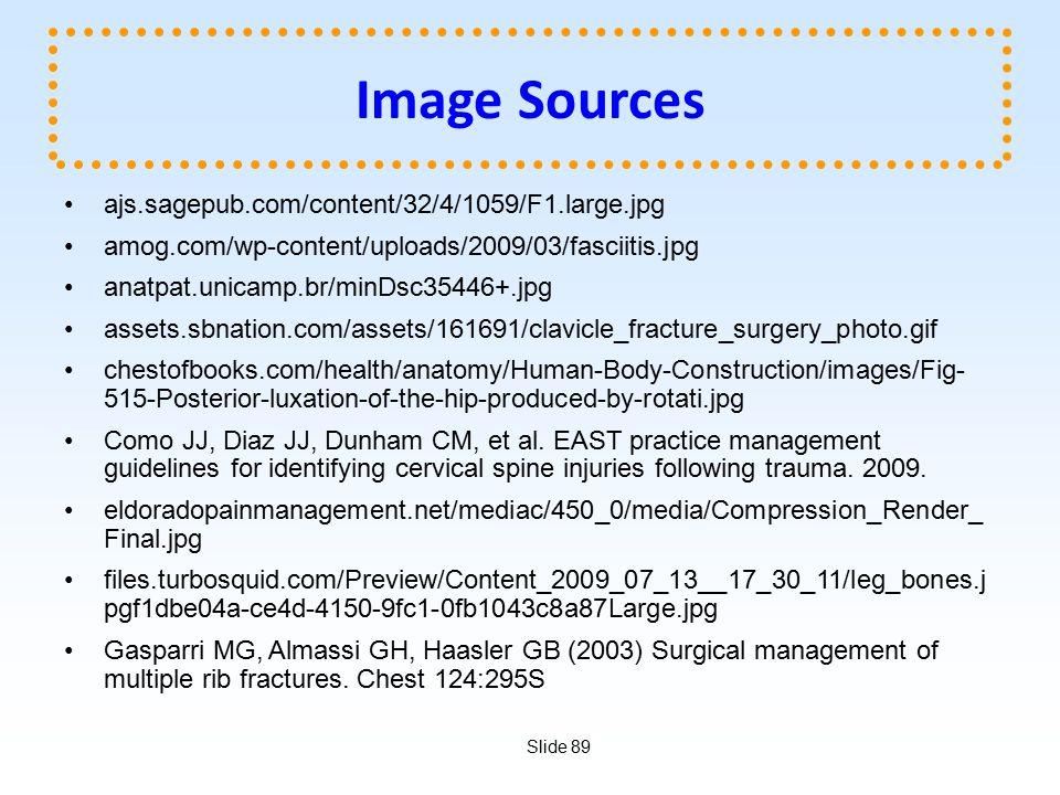 Slide 89 Image Sources ajs.sagepub.com/content/32/4/1059/F1.large.jpg amog.com/wp-content/uploads/2009/03/fasciitis.jpg anatpat.unicamp.br/minDsc35446+.jpg assets.sbnation.com/assets/161691/clavicle_fracture_surgery_photo.gif chestofbooks.com/health/anatomy/Human-Body-Construction/images/Fig- 515-Posterior-luxation-of-the-hip-produced-by-rotati.jpg Como JJ, Diaz JJ, Dunham CM, et al.