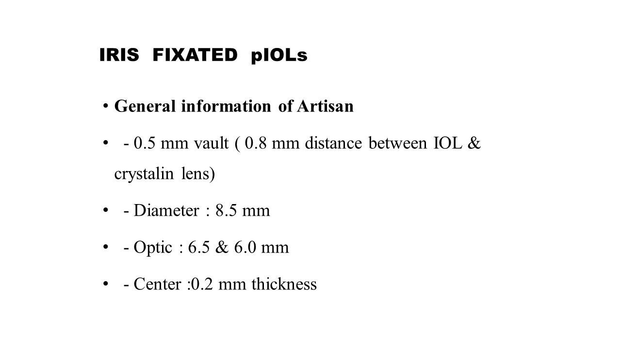 IRIS FIXATED pIOLs General information of Artisan - 0.5 mm vault ( 0.8 mm distance between IOL & crystalin lens) - Diameter : 8.5 mm - Optic : 6.5 & 6.0 mm - Center :0.2 mm thickness