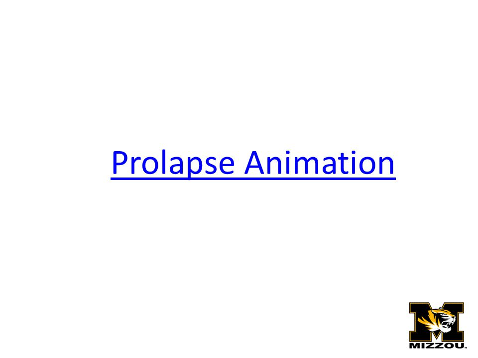 Prolapse Animation