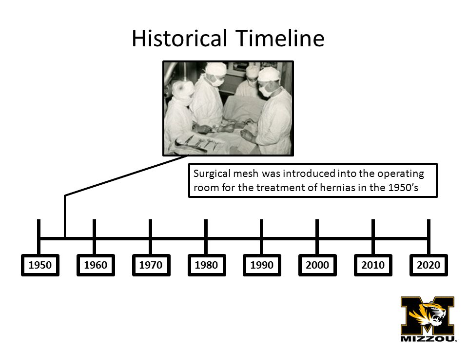 19501970201020001990198019602020 Historical Timeline Surgical mesh was introduced into the operating room for the treatment of hernias in the 1950's