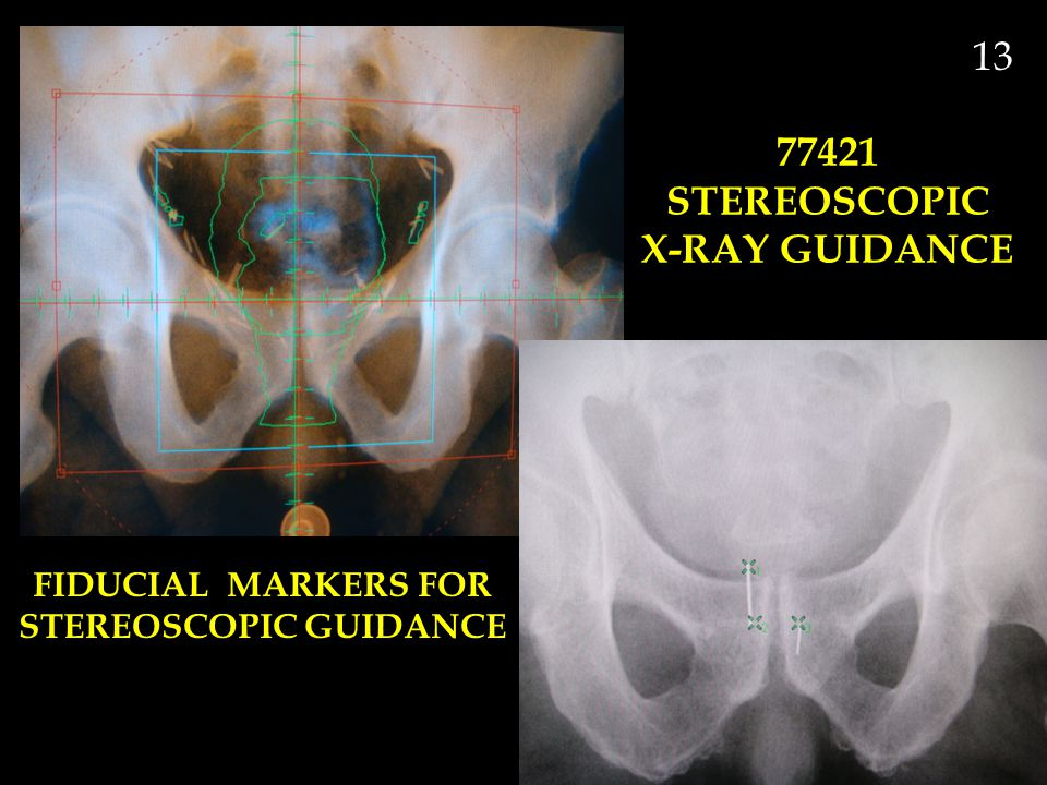 FIDUCIAL MARKERS FOR STEREOSCOPIC GUIDANCE 13 77421 STEREOSCOPIC X-RAY GUIDANCE
