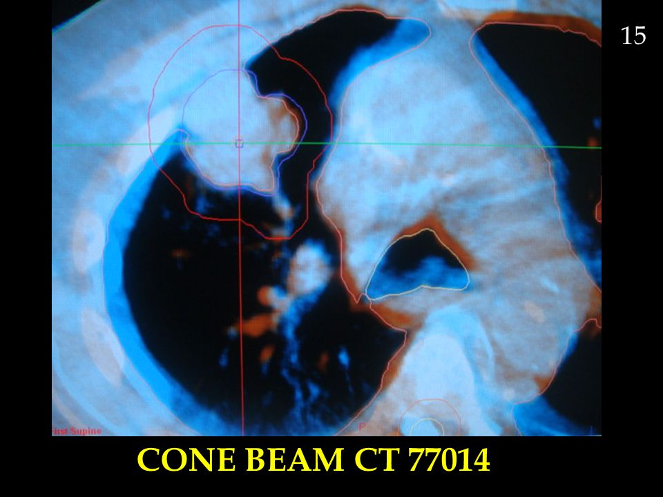 CONE BEAM CT 77014 15