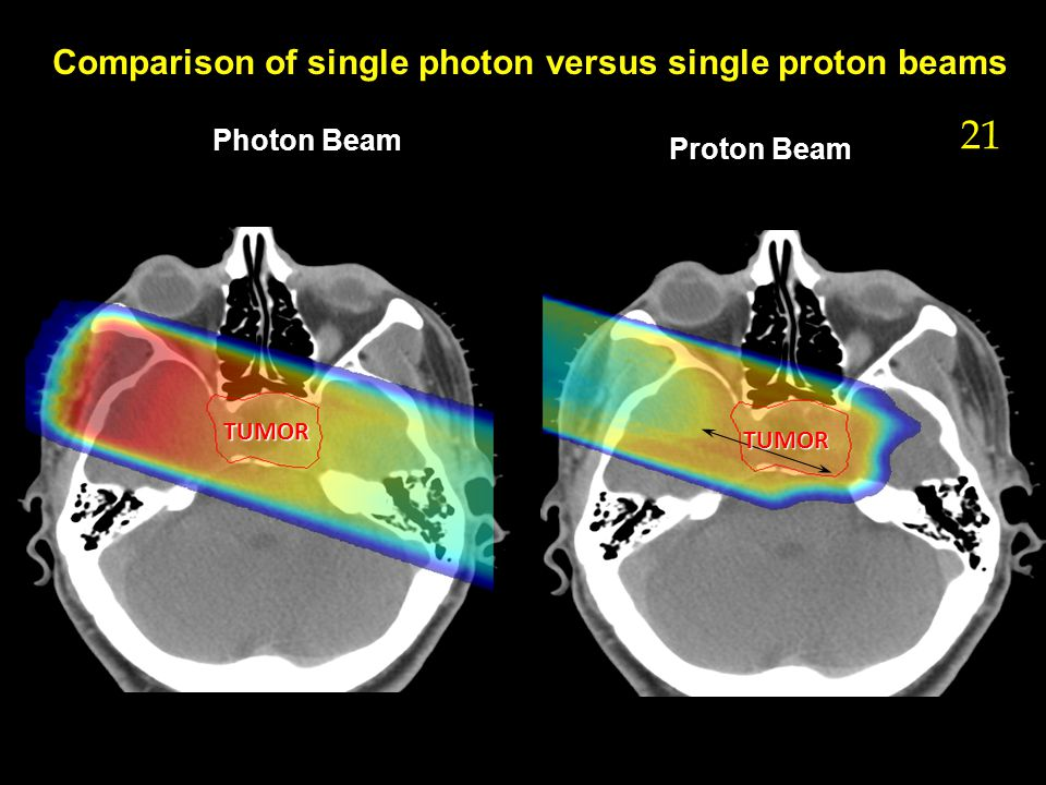 Photon Beam Proton Beam Comparison of single photon versus single proton beams 21 TUMOR TUMOR