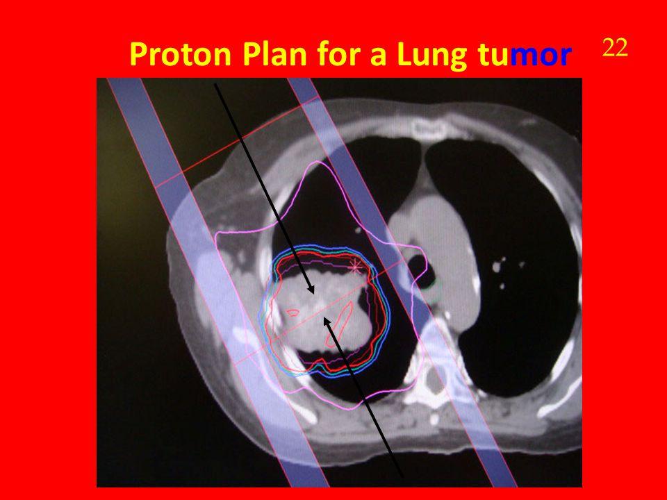 Proton Plan for a Lung tumor 22