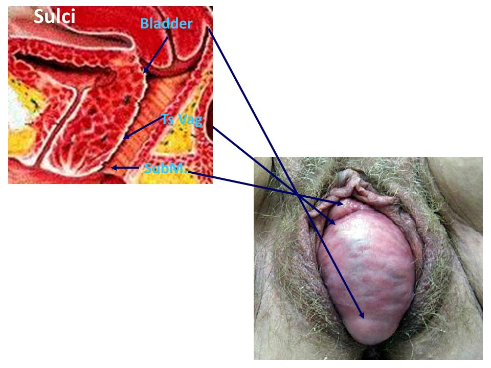 4 Sulci SubM. Ts Vag Bladder