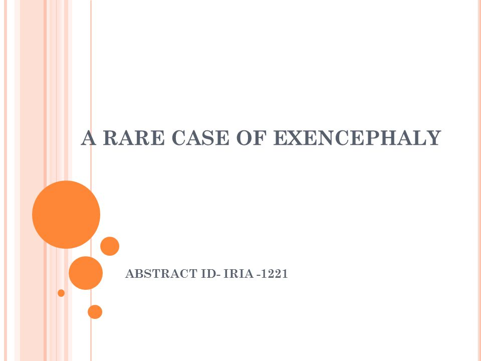 A RARE CASE OF EXENCEPHALY ABSTRACT ID- IRIA -1221