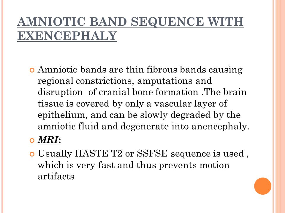 AMNIOTIC BAND SEQUENCE WITH EXENCEPHALY Amniotic bands are thin fibrous bands causing regional constrictions, amputations and disruption of cranial bo