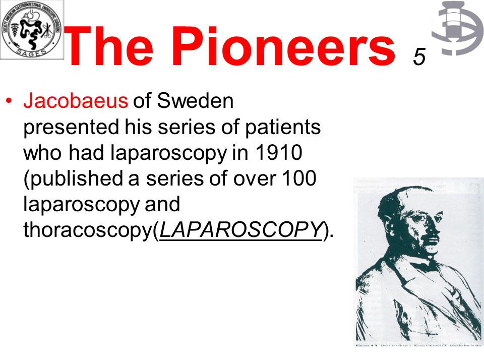 The Pioneers 5 Jacobaeus of Sweden presented his series of patients who had laparoscopy in 1910 (published a series of over 100 laparoscopy and thorac