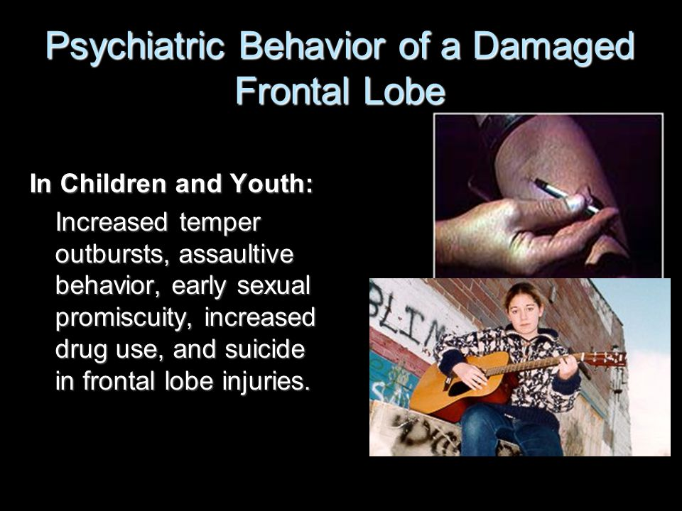 Psychiatric Behavior of a Damaged Frontal Lobe In Children and Youth: Increased temper outbursts, assaultive behavior, early sexual promiscuity, increased drug use, and suicide in frontal lobe injuries.