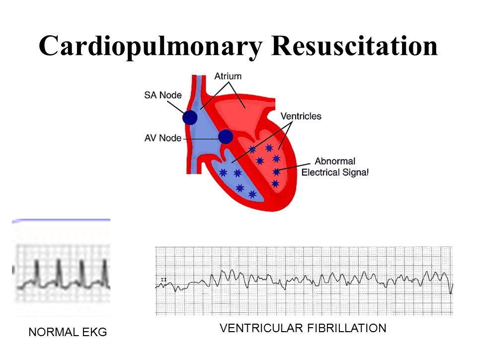 Cardiopulmonary Resuscitation NORMAL EKG VENTRICULAR FIBRILLATION