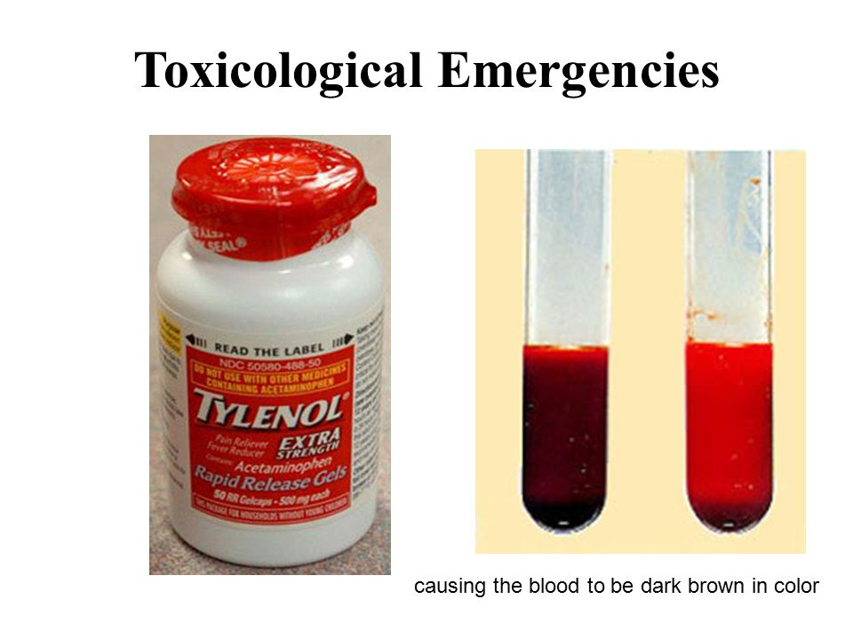 Toxicological Emergencies causing the blood to be dark brown in color