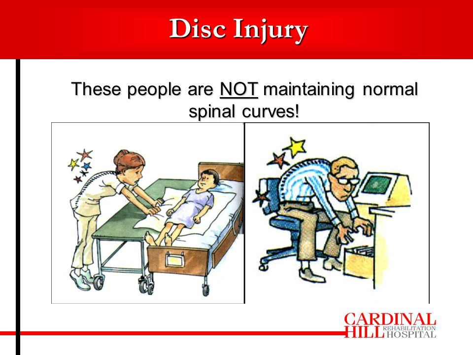 Disc Injury These people are NOT maintaining normal spinal curves!