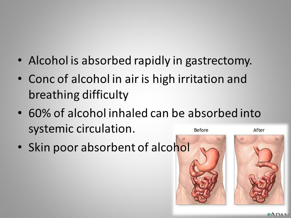 Alcohol is absorbed rapidly in gastrectomy. Conc of alcohol in air is high irritation and breathing difficulty 60% of alcohol inhaled can be absorbed