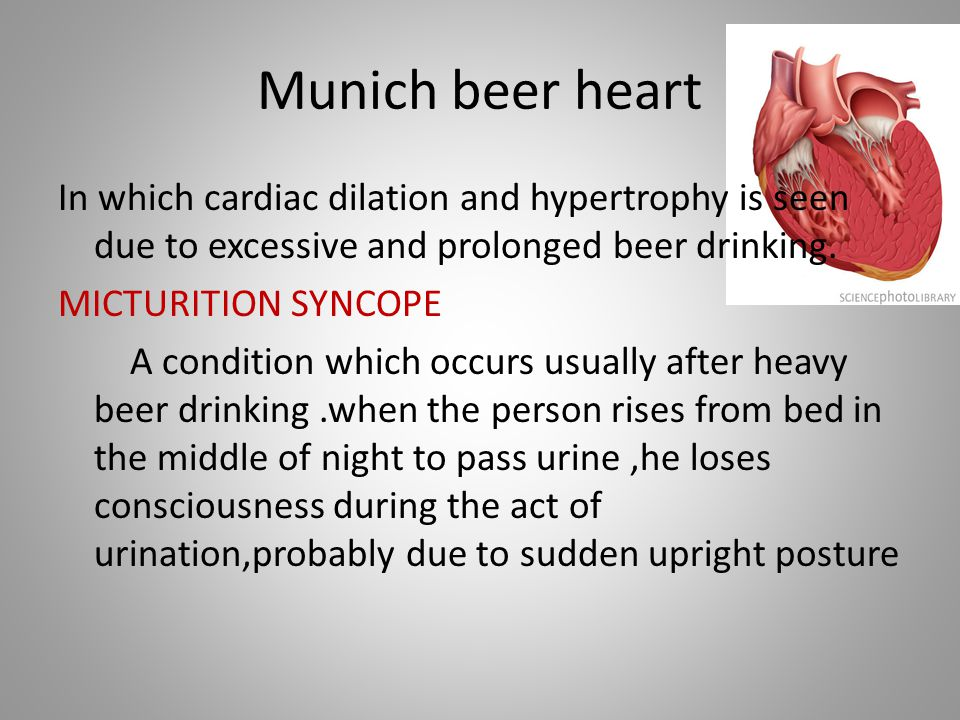 Munich beer heart In which cardiac dilation and hypertrophy is seen due to excessive and prolonged beer drinking. MICTURITION SYNCOPE A condition whic