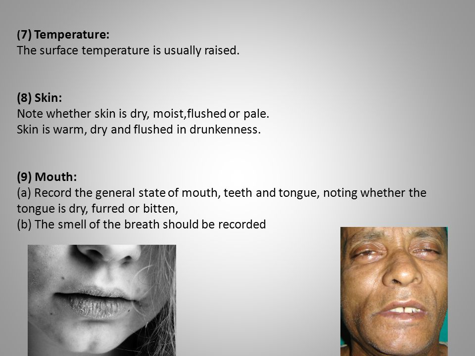 ( 7) Temperature: The surface temperature is usually raised. (8) Skin: Note whether skin is dry, moist,flushed or pale. Skin is warm, dry and flushed
