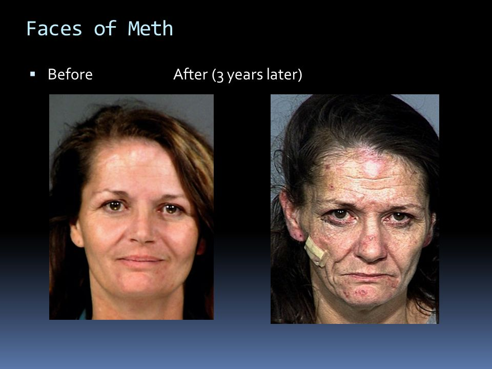 Faces of Meth  BeforeAfter (3 years later)