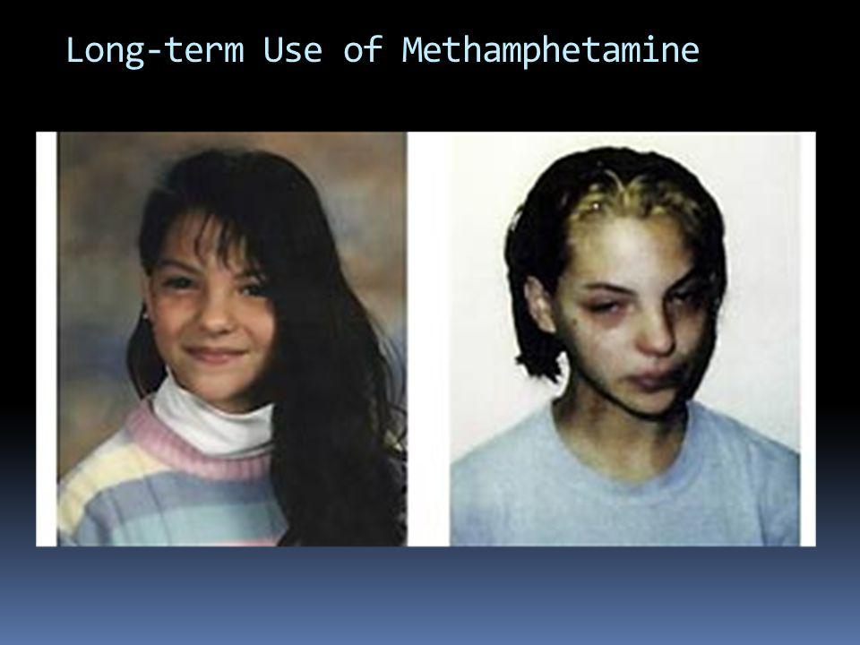 Long-term Use of Methamphetamine