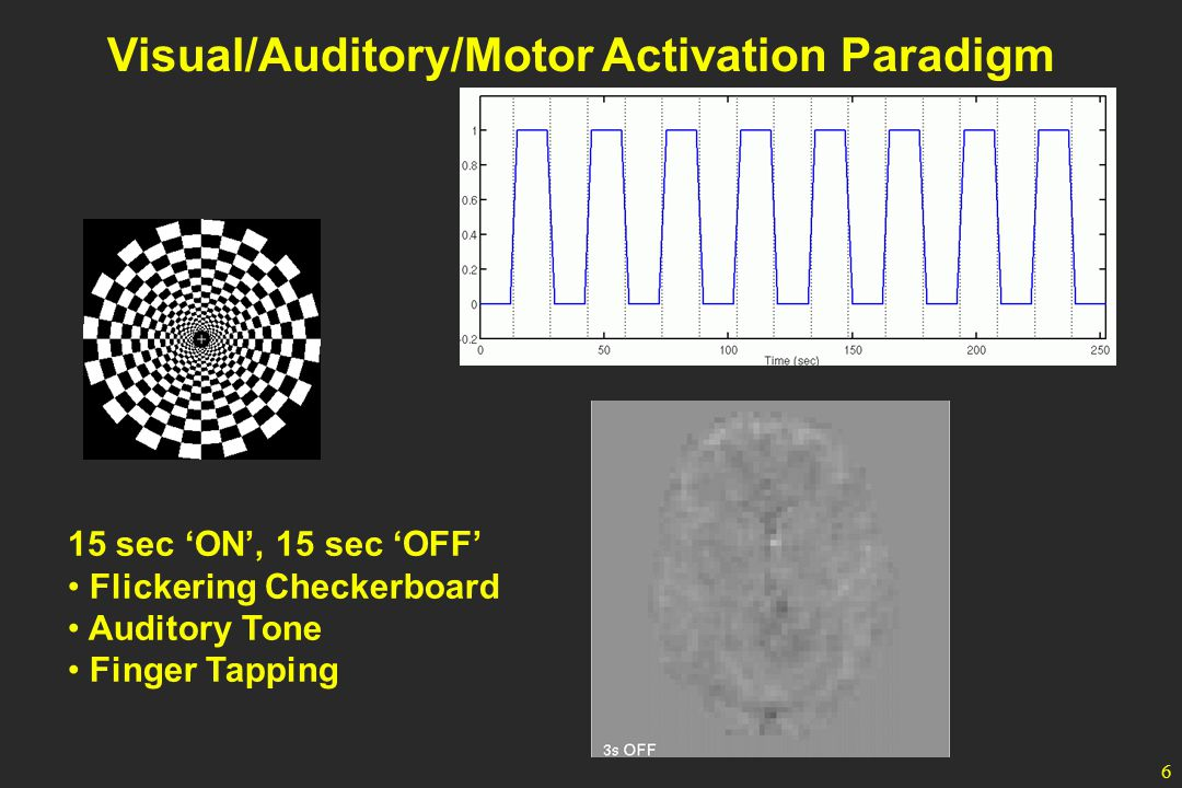 6 Visual/Auditory/Motor Activation Paradigm 15 sec 'ON', 15 sec 'OFF' Flickering Checkerboard Auditory Tone Finger Tapping