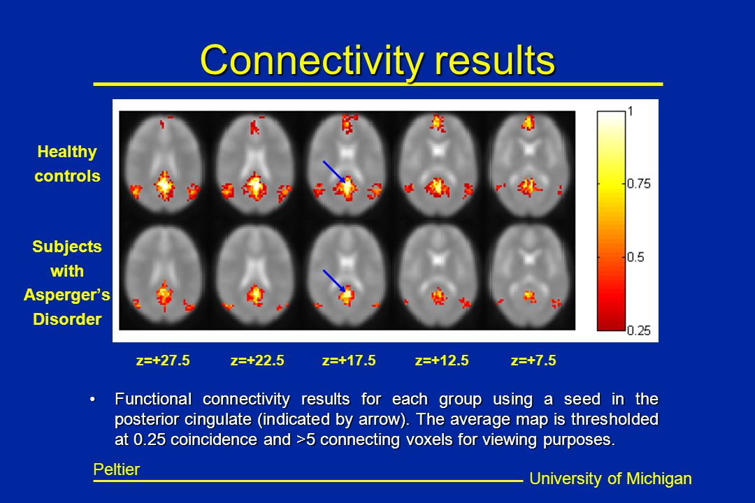 University of Michigan Peltier Connectivity results Functional connectivity results for each group using a seed in the posterior cingulate (indicated