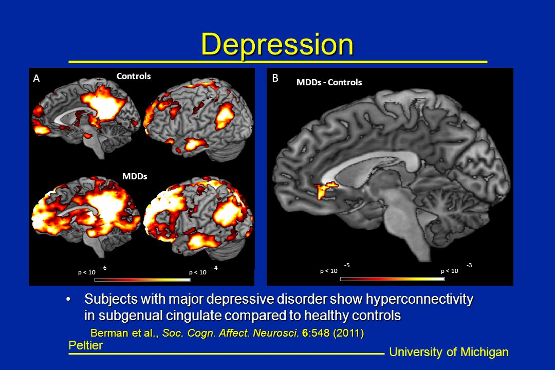 University of Michigan Peltier Controls MDDs p < 10 -6-4 A B p < 10 -5-3 MDDs - Controls Depression Subjects with major depressive disorder show hyper