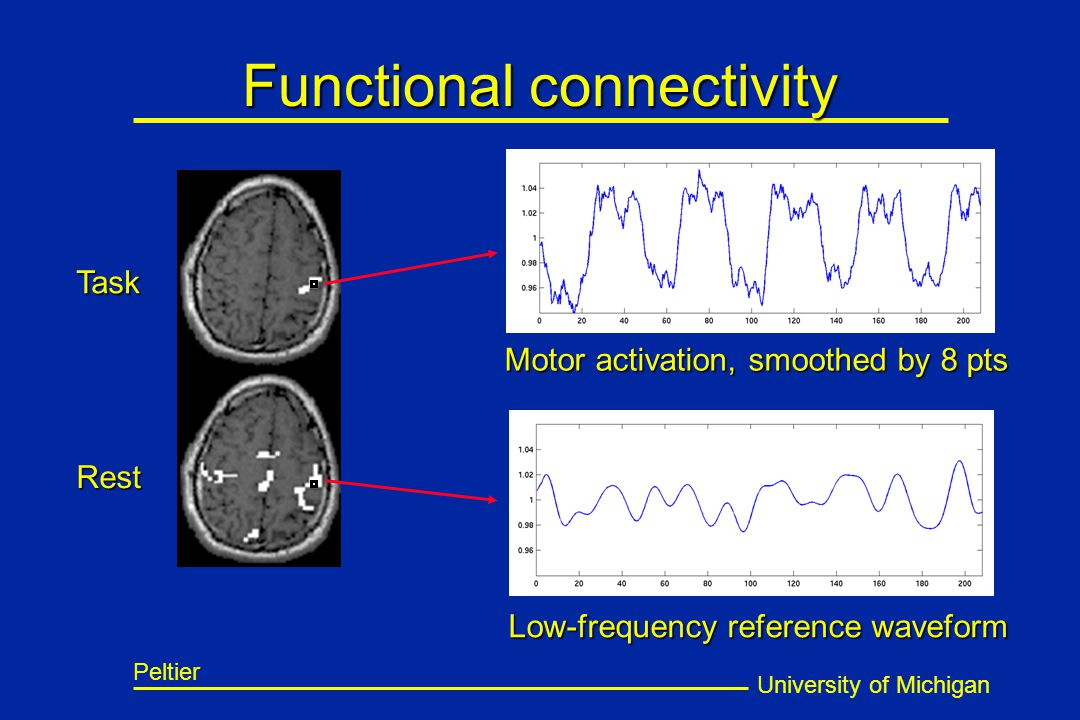 University of Michigan Peltier Functional connectivity Motor activation, smoothed by 8 pts Task Low-frequency reference waveform Rest