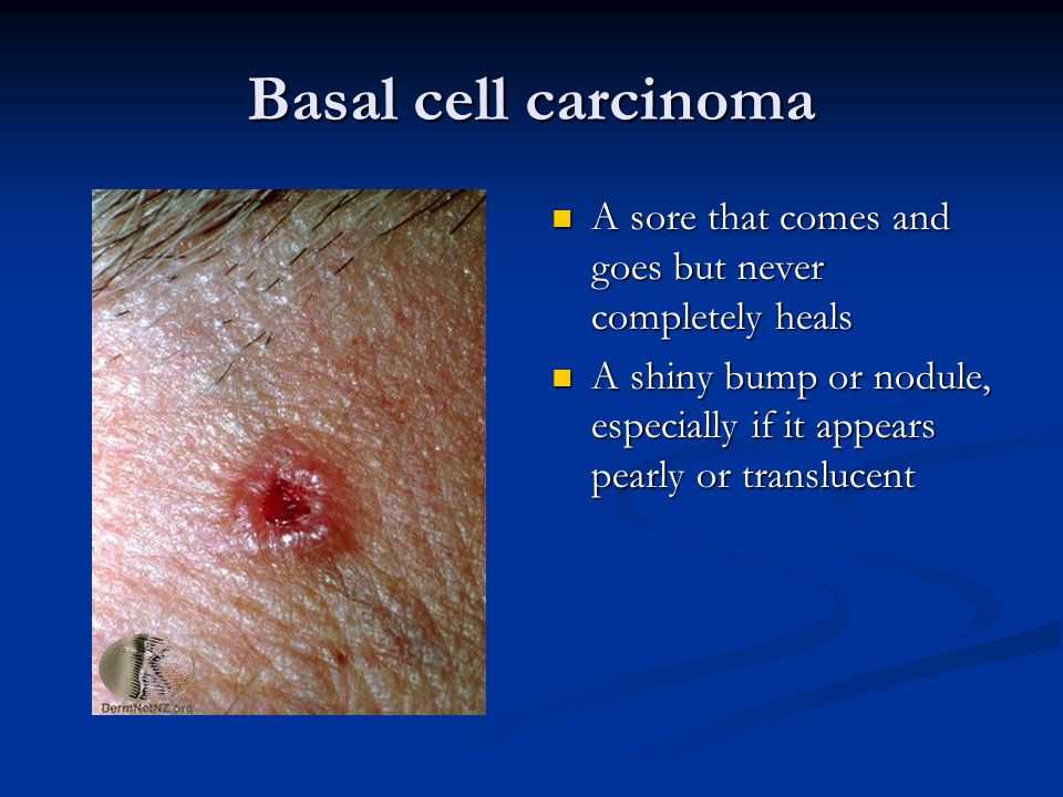 Basal cell carcinoma A sore that comes and goes but never completely heals A shiny bump or nodule, especially if it appears pearly or translucent