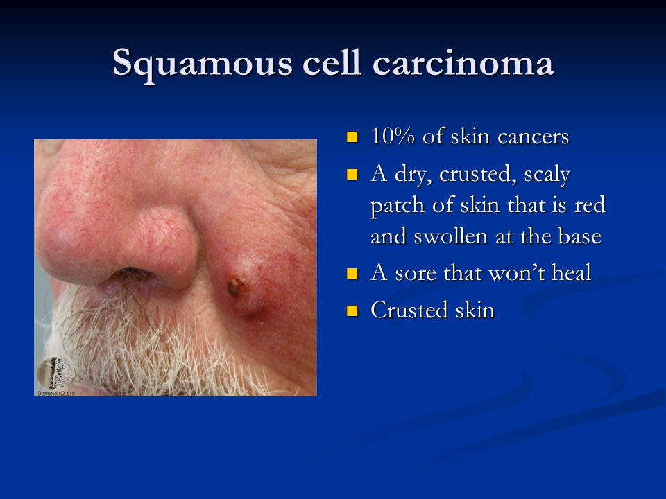 Squamous cell carcinoma 10% of skin cancers A dry, crusted, scaly patch of skin that is red and swollen at the base A sore that won't heal Crusted skin