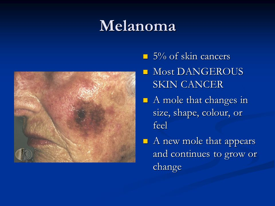 Melanoma 5% of skin cancers Most DANGEROUS SKIN CANCER A mole that changes in size, shape, colour, or feel A new mole that appears and continues to gr