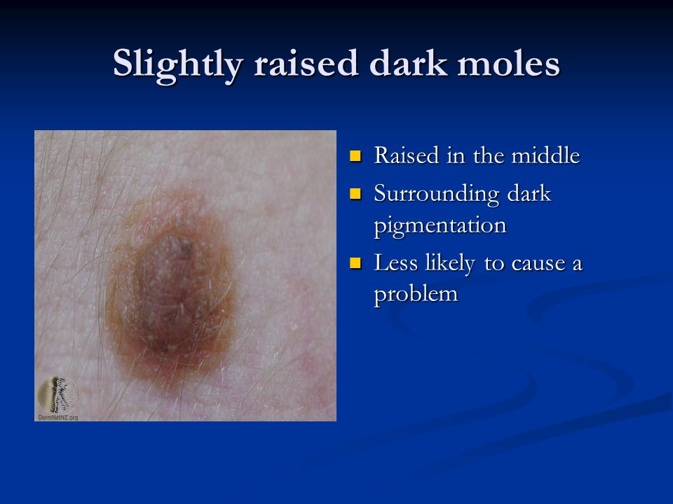 Slightly raised dark moles Raised in the middle Surrounding dark pigmentation Less likely to cause a problem