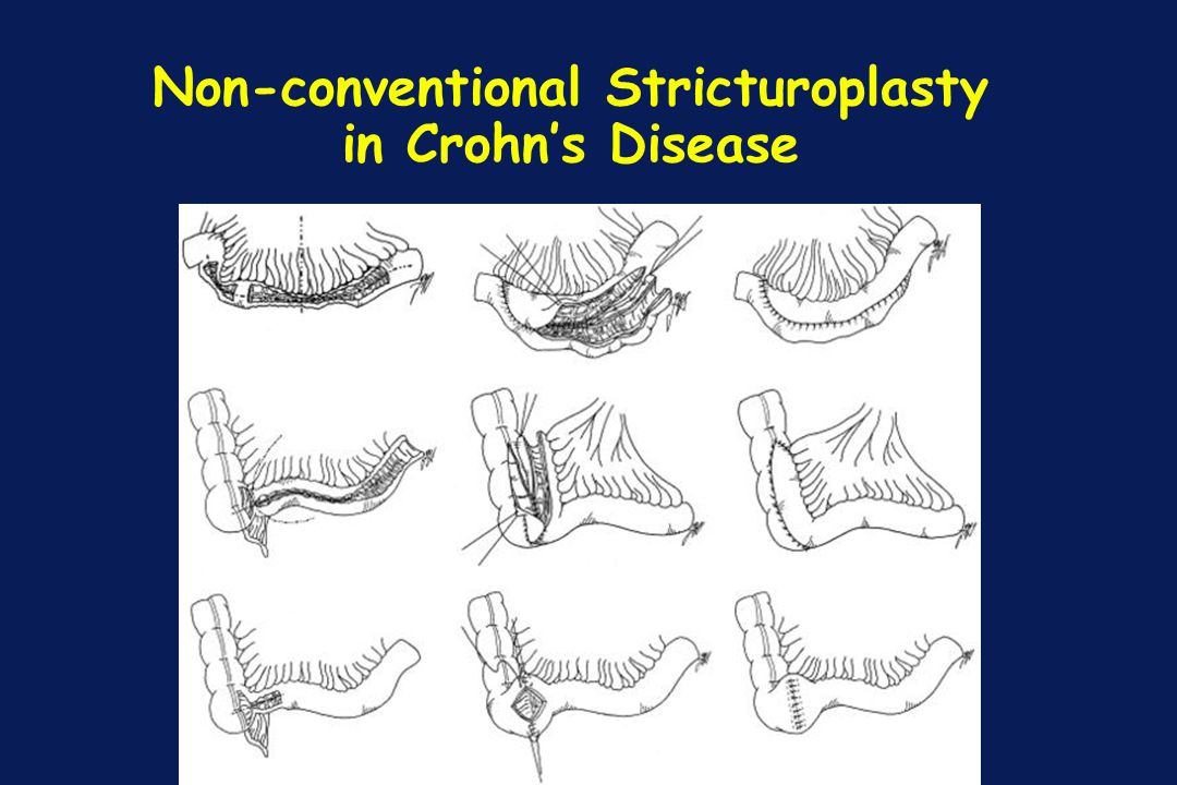 Non-conventional Stricturoplasty in Crohn's Disease
