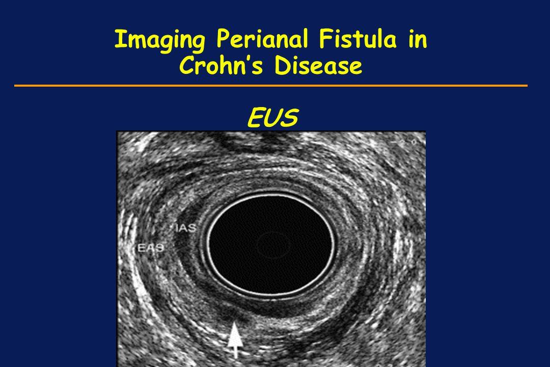 Imaging Perianal Fistula in Crohn's Disease EUS