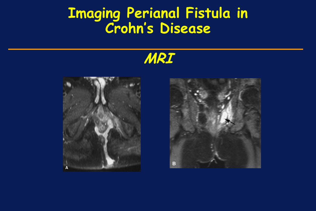 Imaging Perianal Fistula in Crohn's Disease MRI